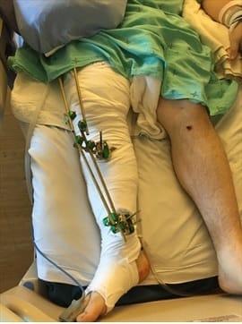 Adam's legs